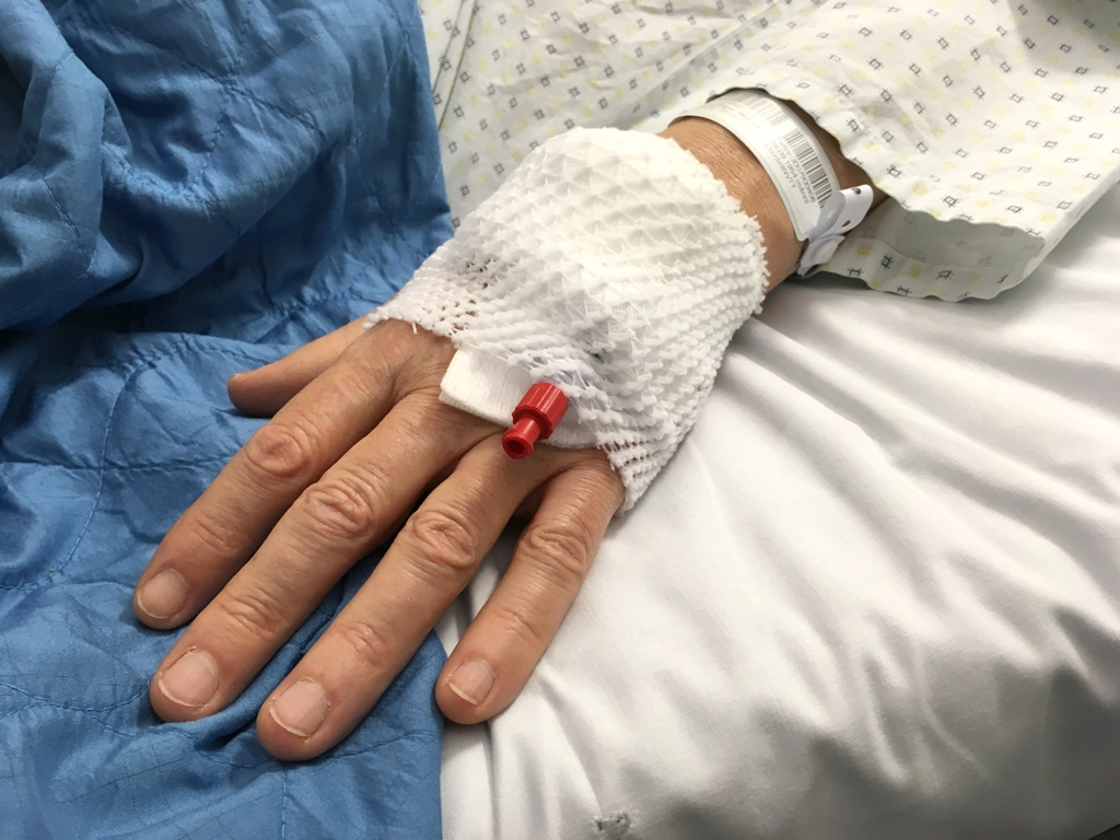 Arterieller Zugang Hand Infusion
