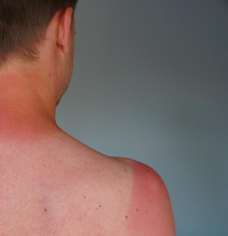 Sonnenbrand Schultern